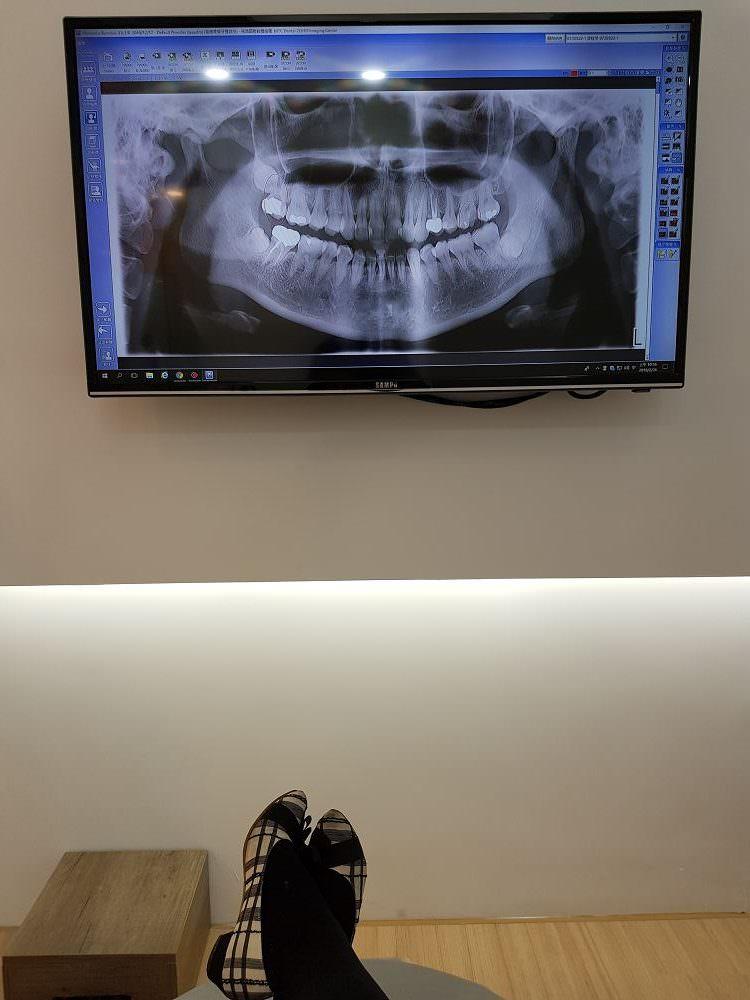 不痛不可怕還有獨立診間看電視,推薦讓我敢看牙醫的林口萊德美學牙醫診所