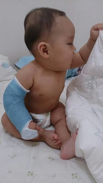 虛驚一場的牽拉肘-幼兒手肘脫